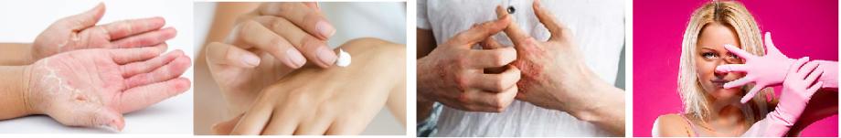 Fodrász - vegyszer- nitril gumikesztyű - Vigyázz Kéz Kesztyű